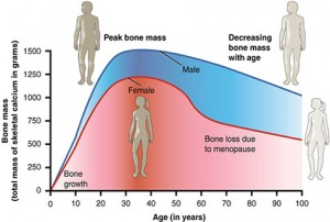 Age Increases Osteoporosis Risk