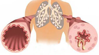 Is asthma another potential consequence of celiac disease.